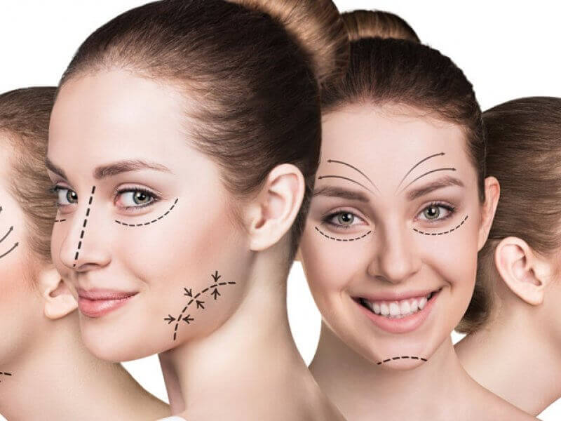 What is Preventive Aesthetic Surgery, What Does It Do?