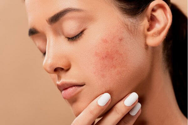 How to Get Rid of Skin Blemishes? Types of Skin Blemishes & Treatment