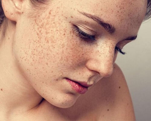 What Should Blemished Skin Pay Attention to in Summer?