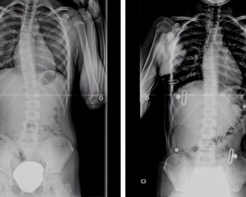 Everything You Need To Know About Scoliosis