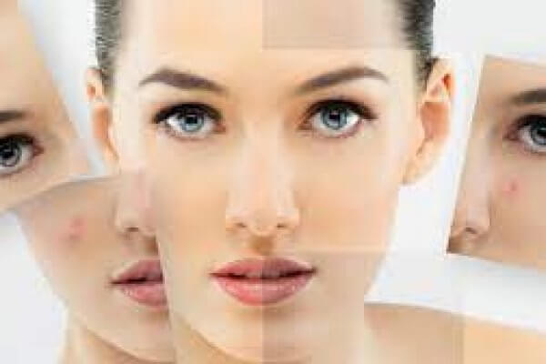Common Mistakes in Skin Care