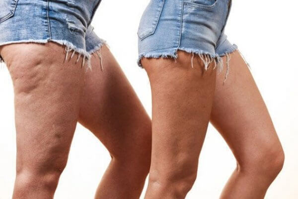 Frequently Asked Questions About Cellulite Formation